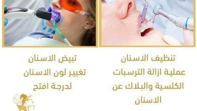 Photo of أماني أبو صالح .. هذه أفضل الخطوات الفاعلة لحماية الأسنان أو معالجتها