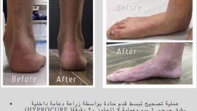 Photo of بتقنية جديدة .. طبيب أردني يتمكن من علاج تبسط القدم