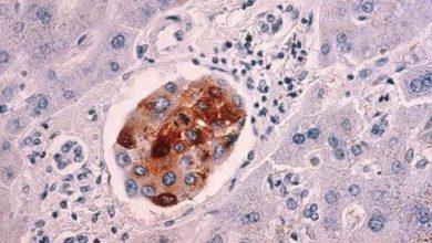 Photo of علماء يبتكرون «قنبلة سكر» تقضي على الخلايا السرطانية في ثوان