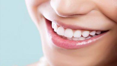"""Photo of """"أبيض متل اللؤلؤ"""" … الدكتورة أماني أبو صالح تتحدث لطب24 عن تبييض الأسنان"""