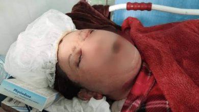 Photo of الأردن … تفاصيل جريمة حرق رجل لزوجته بالزيت